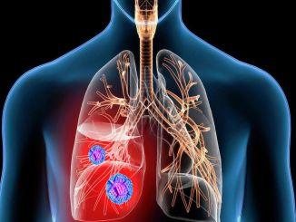 大流行中肺癌的診斷率上升