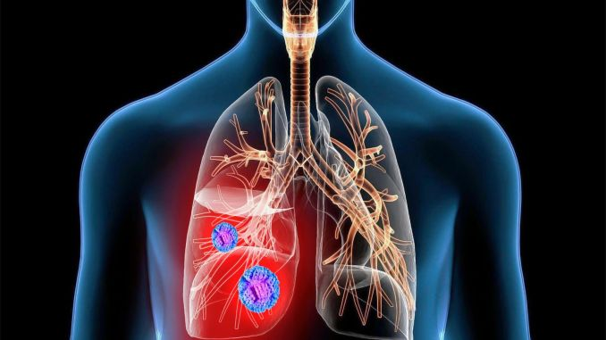 lung cancer diagnosis rate increased in pandemic