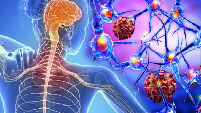 يمكن تقليل مخاطر الإعاقة من خلال العلاج المبكر لمرض التصلب العصبي المتعدد