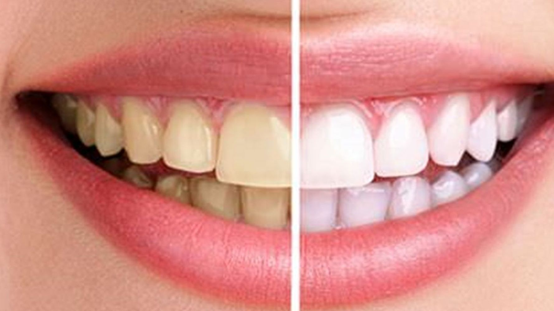 yellowing teeth prevent laughing