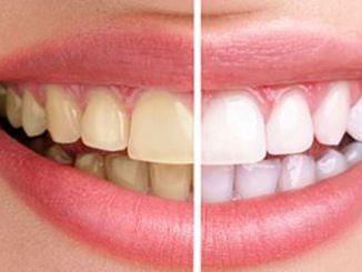žuti zubi sprečavaju smijeh