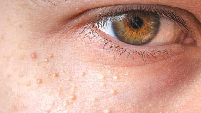 Pay Attention to the Oil Glands Around the Eyes