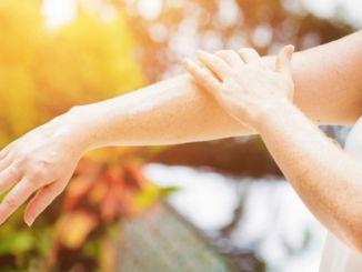 sun rays invite skin spots