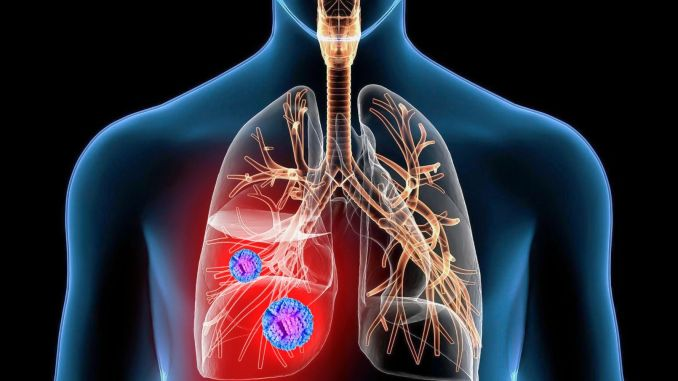 Chances of surgical treatment of lung cancer