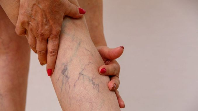 non-surgical varicose veins treatment method started to be applied in venaceal small intestine