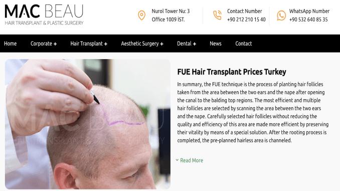 毛发移植价格
