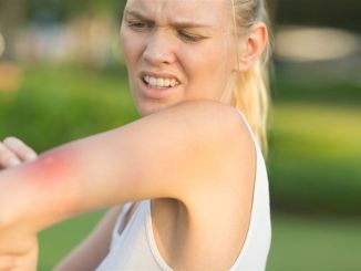 What to do in insect mosquito tick and bee sting
