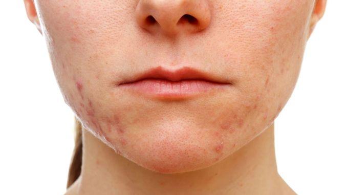 Moguće je zaštititi vašu kožu od akni uzrokovanih COVID maskama.