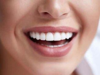 Китайські дослідники розробили метод відбілювання, який не завдає шкоди зубній емалі