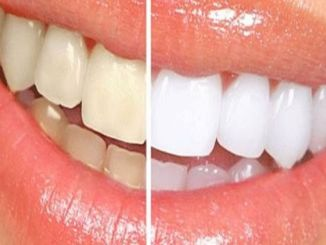 Der Weg zu gesunden Zähnen