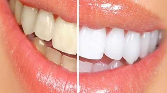 the way to have healthy teeth