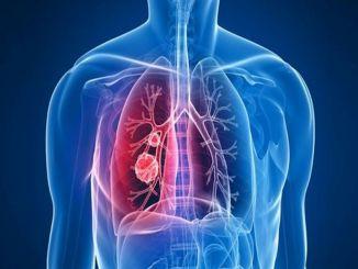 ne propustite redovite provjere plućnih čvorova