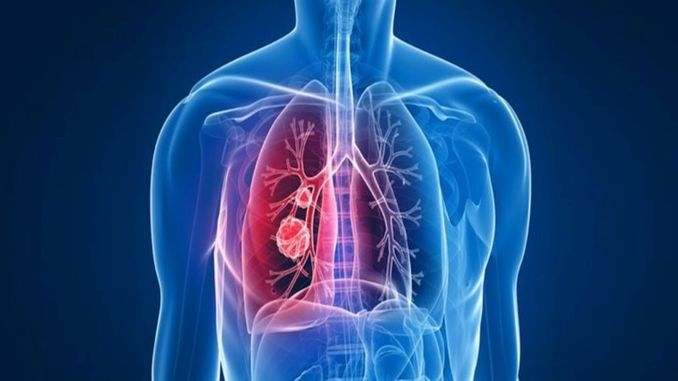 אל תחמיצו בדיקות סדירות של גושי ריאות