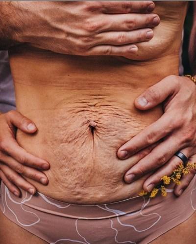 Marido escreve post emocionante sobre corpo pós-parto da esposa