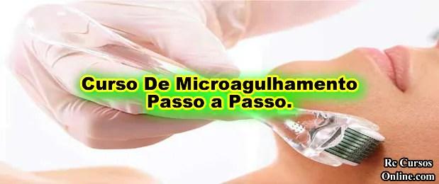 Curso-de-microagulhamento-capilar
