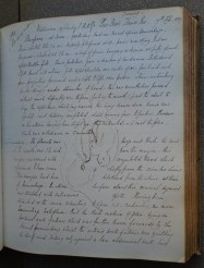 A page from Barnes' Case Book (archive reference S60/C). This one contrains an account of a delivery and a sketch of the baby in utero.