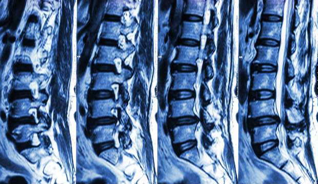 MRI back pain spine