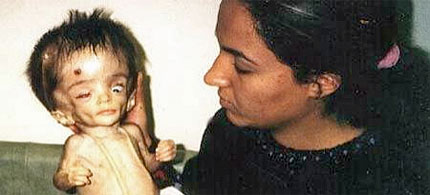 In September 2009, Fallujah General Hospital, Iraq, had 170 newborn babies, 24 percent of whom were dead within the first seven days, and 75 percent of the dead babies were classified as deformed. A significant number of babies who survived also have severe disabilities. (photo: BBC News)