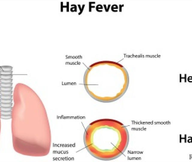 Hay Fever Is The Most Common Manifestation Of An Inherited Or Atopic Allergy The Affliction Is Also Known As Allergic Rhinitis Or Pollinosis