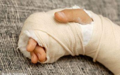 Green Beret's Trauma Guide: Bandaging and Splinting