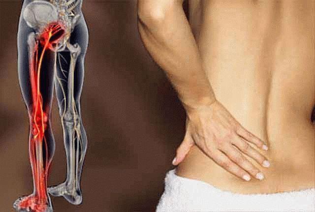 Деформирующий артроз колена народное лечение