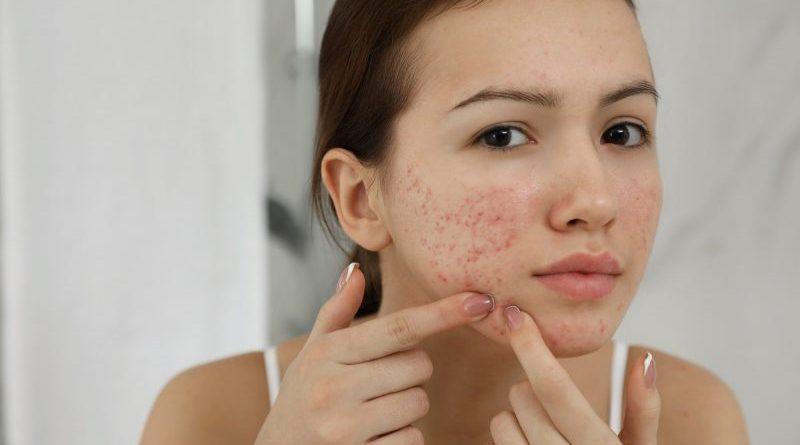 5 remedii naturale pentru a scăpa rapid de acnee. Dermatologii vin cu informații noi