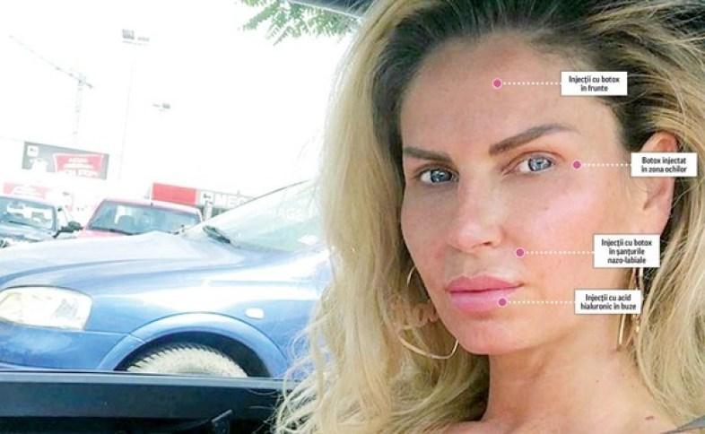 Andreea Bănică recunoaște adevărul despre operațiile estetice. A apelat sau nu artista la intervenții chirurgicale?