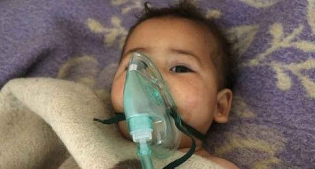 baby recovering from Assad gas attack