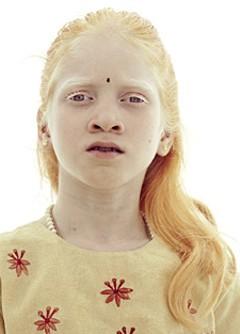 White history and the Albino gene | Black today