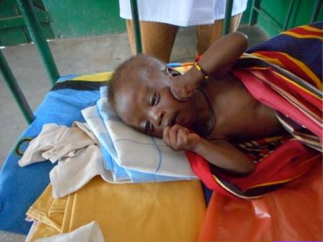 Monduru Fadila resting in the pediatric ward
