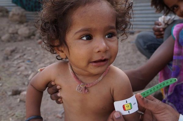 young boy receives malnutrition test