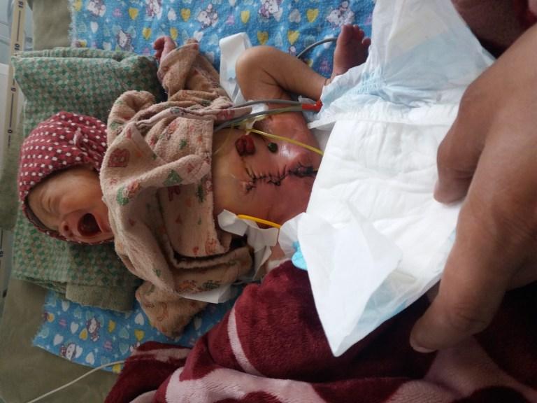 AS Nepal KCH Q2 2018 Preterm Baby after surgery
