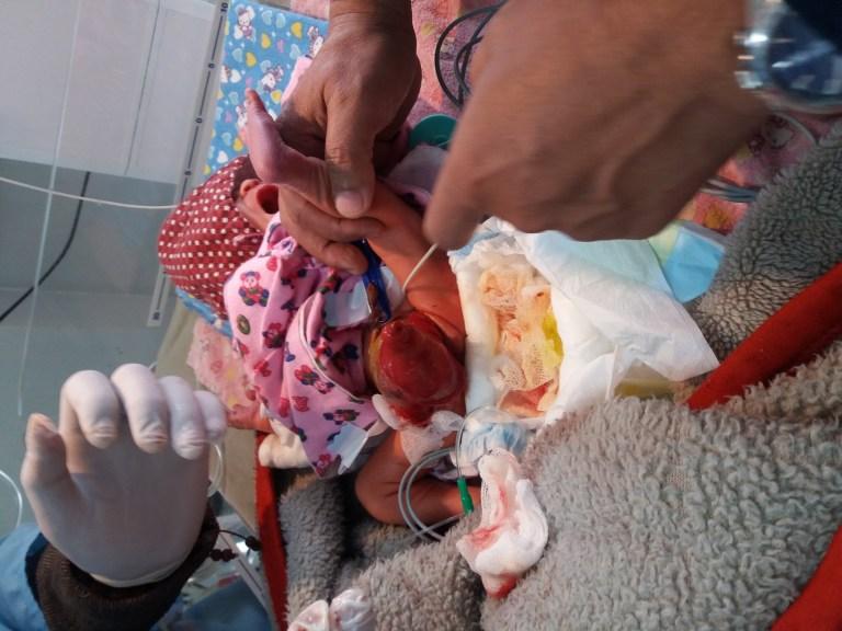 AS Nepal KCH Q2 2018 Preterm Baby before surgery