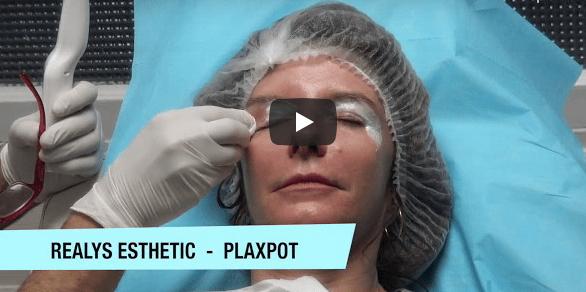 Vidéo – Blépharoplastie non chirurgicale