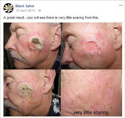 Corrosive black salves still disfiguring Australians, for
