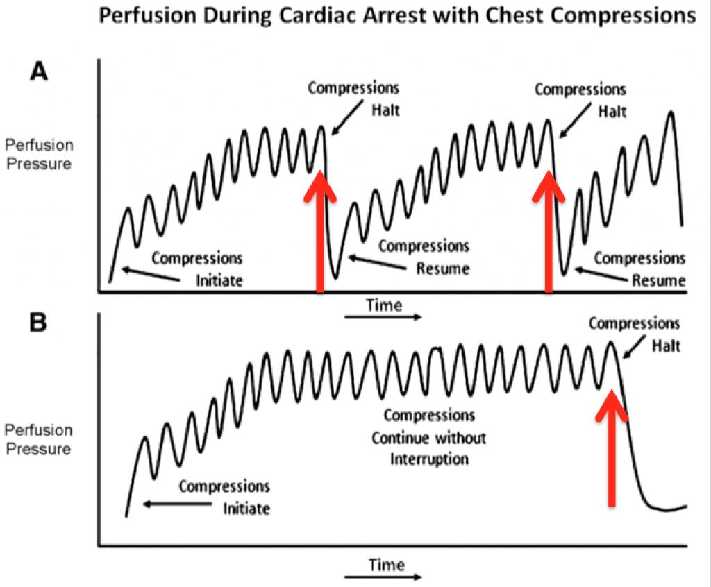 Beyond Acls Cpr Defibrillation And Epinephrine