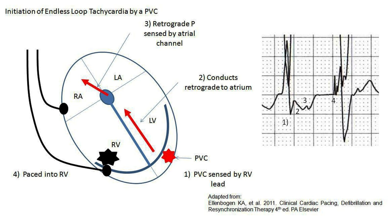 Pacemaker Mediated Tachycardia Learningecgspot
