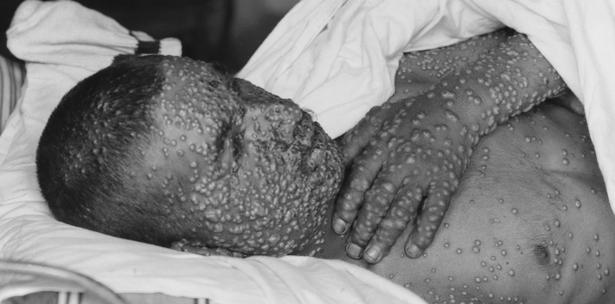 Resultado de imagen para viruela