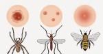 picadura de insectos - Tortilla de patatas en Thermomix