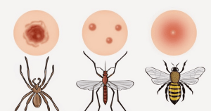 picadura de insectos - Remedios caseros