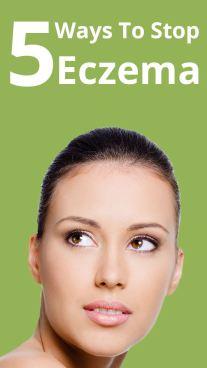 5 Ways To Stop Eczema