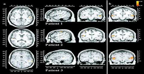 Pictures Of The Brain Of A Person With Schizophrenia