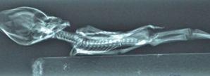 radiografia alien