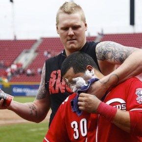 Thoughts on the Latos accusations; Mesoraco, Price, Bailey respond
