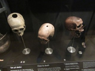 Battle wounds. Trepanation was an operation where a piece was cut out of the skull to remove bone splinters, tumors, or blood clots.