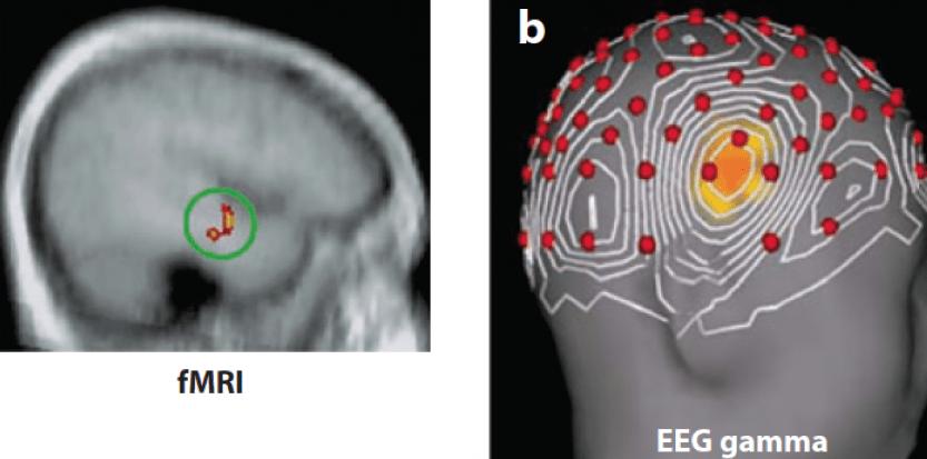 Quand une idée fuse, le gyrus temporal supérieur droit s'active (à gauche) et émet alors des ondes gamma (à droite). ©J.KOUNIOS AND M.BEEMAN