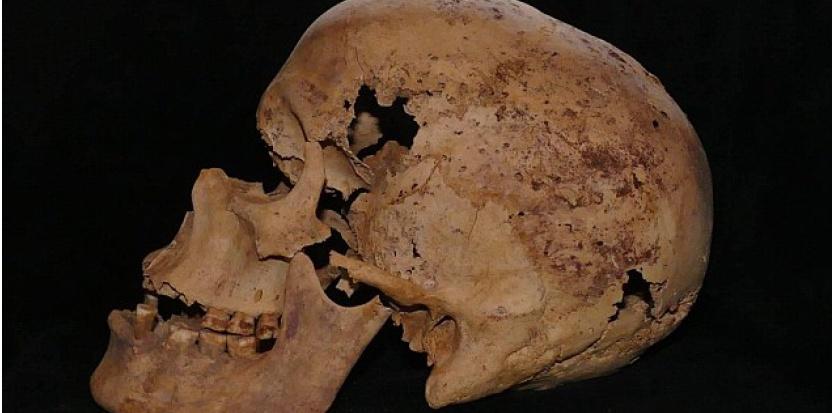 Vieux de 4.200 ans, le squelette de cette femme retrouvé en Egypte présente les plus anciennes traces de cancer jamais retrouvées. ©Ministère égyptien des Antiquités