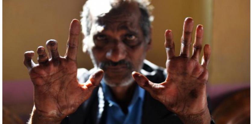 """Un malade montre ses mains marquées par la lèpre, le 11 mars 2015 dans une """"colonie de lépreux"""" à New Delhi. (c) Afp"""