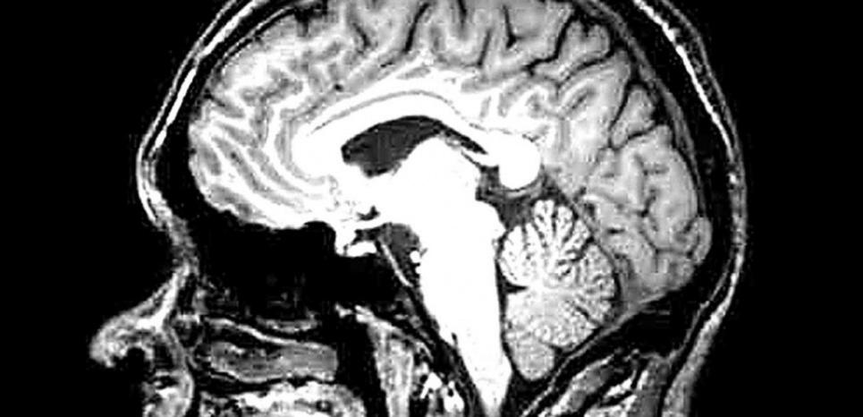 Après consultation médicale, ses médecins lui diagnostiquent une tumeur au cerveau qu'il va falloir opérer. © Inition / Rex Features/REX/SIPA