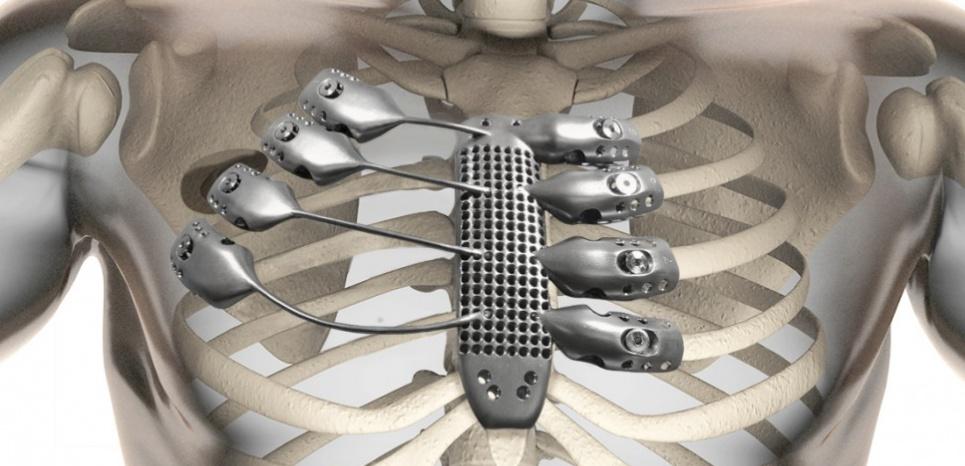 La prothèse de cage thoracique et de sternum. © Anatomics